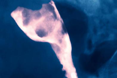 X-ray of endometrial cancer (Photograph: SPL)