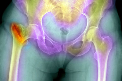 Osteoporotic hip fracture: new tool no substitute for existing FRAX