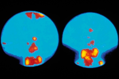 Radioactive tracer (orange/red) shows tumour cells around the parathyroid gland (Photograph: SPL)