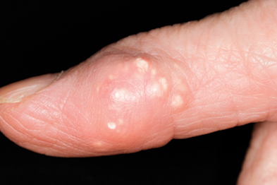 Gout tophus on the finger of 90-year-old female patient (Photograph: SPL)
