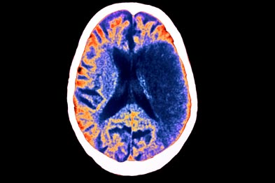 Stroke: survivors often face communication challenges (photo: SPL)