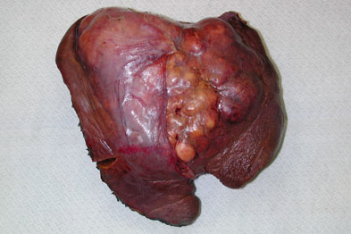 Hepatocellular carcinoma: potential treatment identified (photo: SPL)
