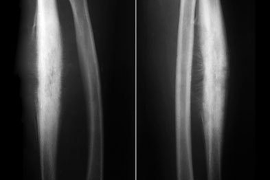 Frontal (left) and profile (right) X-rays of the forearm of a 12 year-old with Ewing's sarcoma