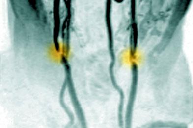 Carotid artery stenosis: endarterectomy was found superior to stenting