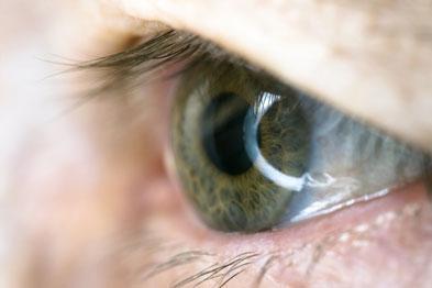 Eyes appear normal in dry eye