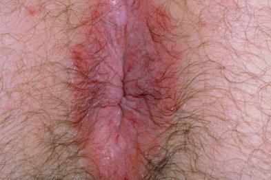 ECzema: pruritus ani is rarely due to serious pathology