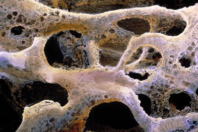 A new clinical area has been introduced for osteoporosis (Photograph: PROF. P. MOTTA/DEPT. OF ANATOMY/UNIVERSITY)
