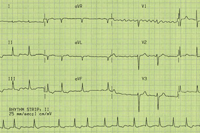 ECG demonstrating atrial fibrillation (Author image)