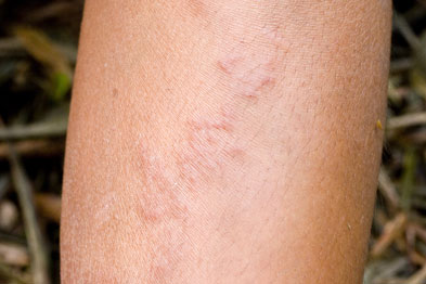 Eosinophilia may be marked in cutaneous larva migrans infestations (Photograph: SPL)