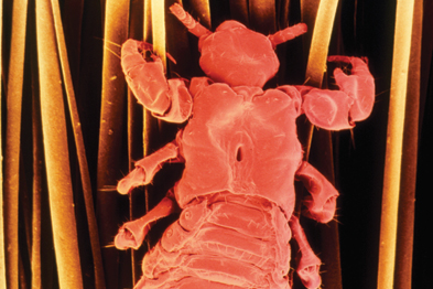 Head lice are blood-feeding insects of 1–4mm in length (Photograph: SPL)