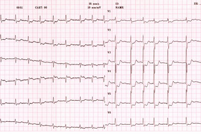 ECG showing AF: A quality of life is not dependent on absolute heart rate, research has shown