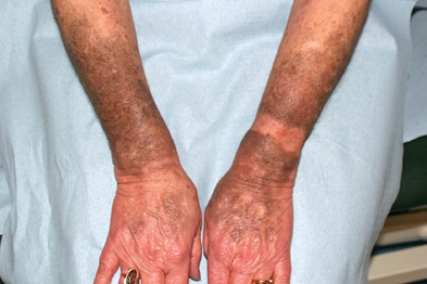 Marked blue/grey discoloration of light-exposed areas of forearms
