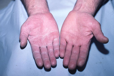 This patient had peeling skin on one hand only