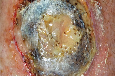A diagnosis of pyoderma gangrenosum was made (Photograph: Dr P Marazzi/SPL)