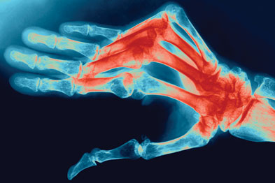 Rheumatoid arthritis: smoking has been shown to increase the risk of developing the condition (Photograph: SPL)