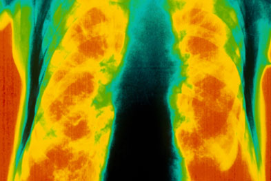Combination therapy for COPD was thought to give additional benefits