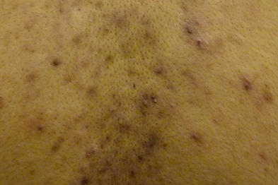 Acne most commonly affects the back, face and chest (Photograph: Dr Anneke Kai and Dr Sandeep Cliff)