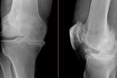 X-rays of knees: severe osteoarthritis with varus deformity