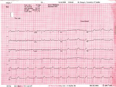 Electrocardiogram depicting atrial fibrillation