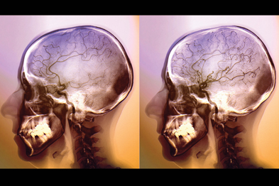 Stroke: fast referral is vital to boost patient outcomes (Photograph: SPL)