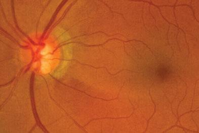 Retinal nerve fibre defect
