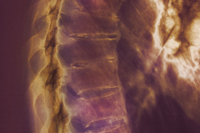 Treatment of ankylosing spondylitis is aimed at limiting structural damage