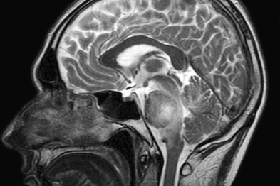 Tumours such as brain stem glioma may be detected by an MRI scan
