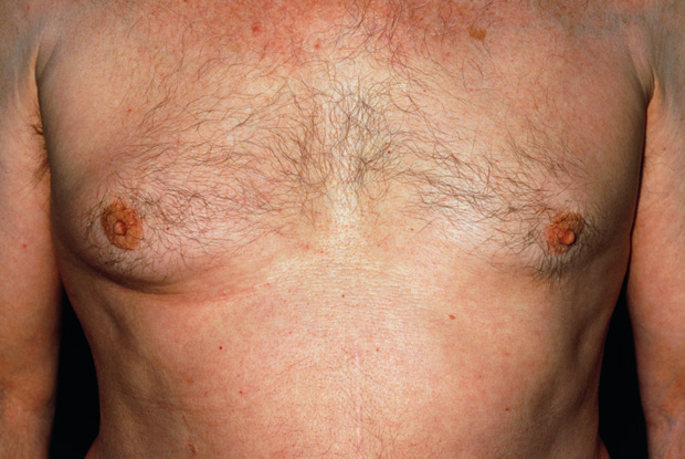 Gynaecomastia is a differential diagnosis in male breast cancer