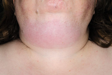 Cellulitis of the neck