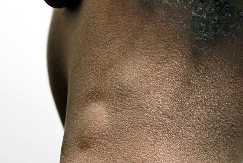 Neck lumps are not uncommon and differential diagnoses is broad (SPL)
