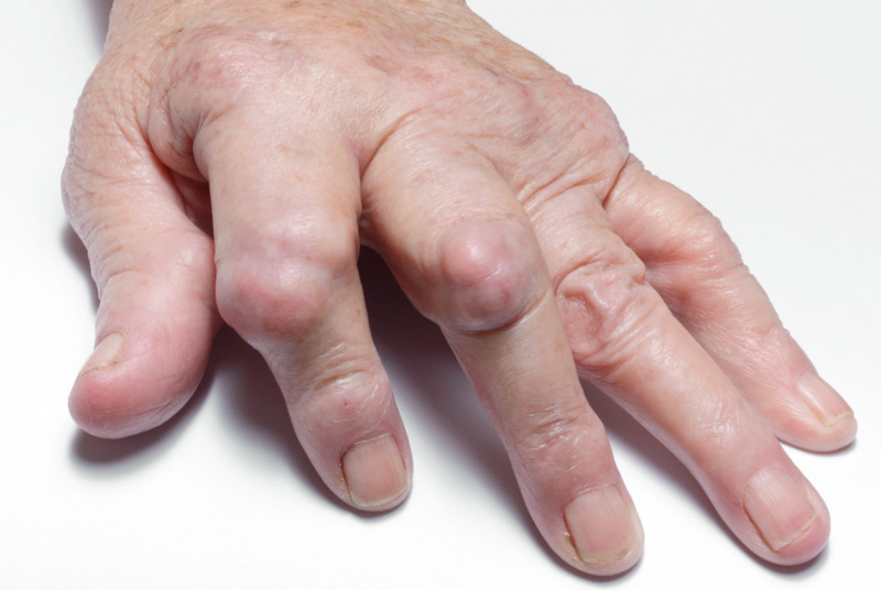 Delays: the rheumatoid factor test may miss cases of arthritis (Photo: SPL)