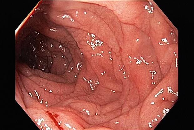 Endoscopy of the duodenum in coeliac disease