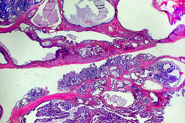Light micrograph showing the spread of endometrial cancer cells (Picture: Garry DeLong/Science Photo Library)