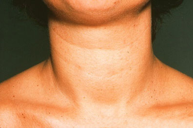 Goitre in hypothyroidism