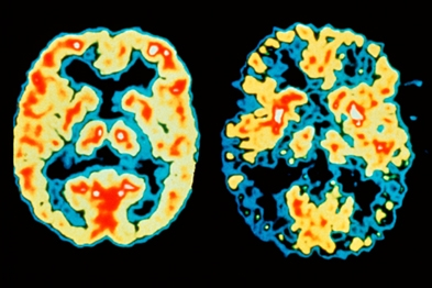 Scan of a normal brain (left) and AD patient (right). Blue/black areas show reduced brain activity (Photograph: SPL)