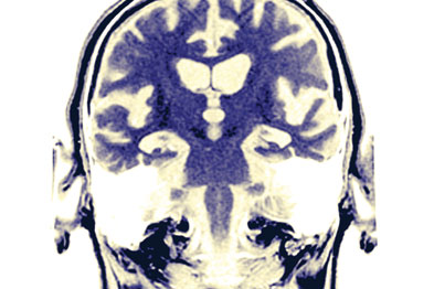 Alzheimer's risk was linked to the self-rating of health (Photograph: SPL)