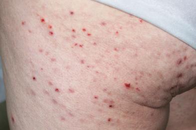 Dermatitis herpetiformis: autoimmune disease (Photograph: Author image)