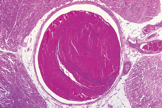 Light micrograph showing DVT (dark pink) blocking lumen of vein (Science Photo Library)