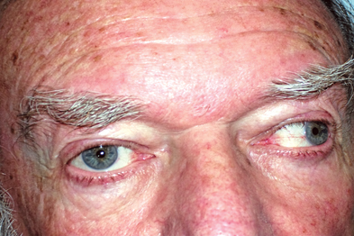 Eye movements were impaired in all positions of adduction (author image)