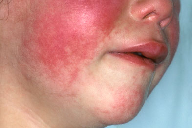 Scarlet fever presents with an erythematous, blanching rash which spreads over the body after 12-24 hours