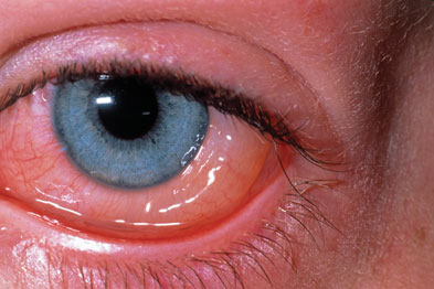 Sublingual immunotherapy improved the symptoms of rhinoconjunctivitis (Photo: DR P. MARAZZI/SCIENCE PHOTO LIBRARY)
