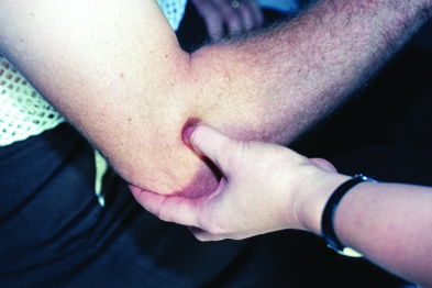 Tennis elbow: usually a self-limiting condition