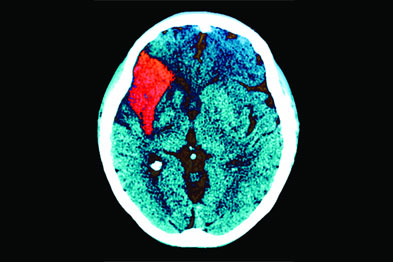 The risk of recurrence after a TIA or stroke is substantial (Photograph: Zephyr/SPL)