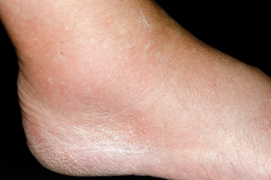 Gout: diagnosis can be difficult to differentiate from rheumatoid arthritis (Photograph: Dr P Marazzi/SPL)