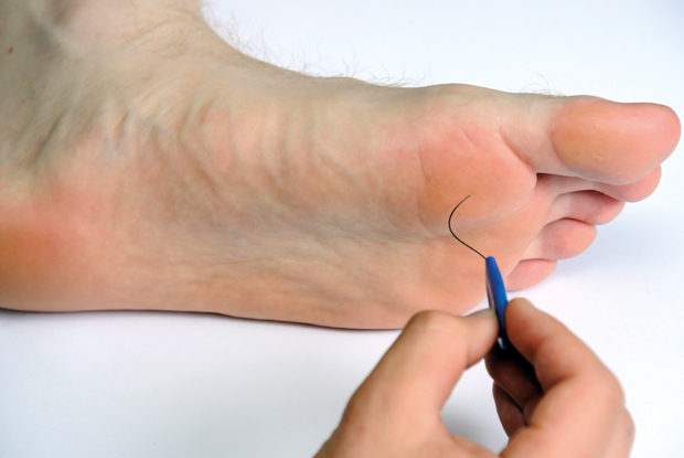Foot Problems In Diabetes Gponline