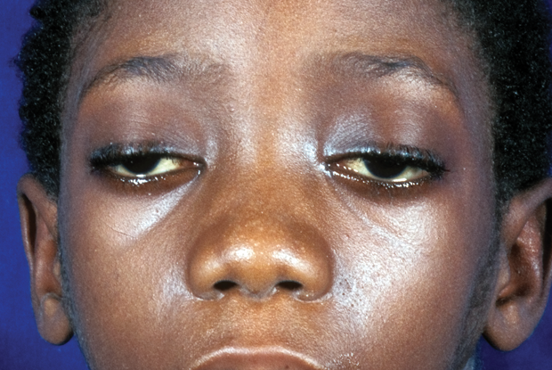 Patient with signs of upper eyelid and facial weakness (Photograph: SPL)
