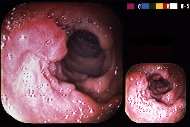Endoscopic view showing colon cancer (Photo: BSIP/UIG/Getty Images)