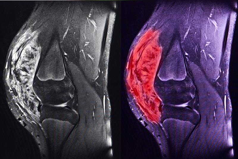 An MRI showing a sarcoma of the knee (Photo: semnic/Getty Images)
