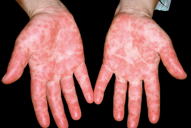 HFMD: fever is followed by the appearance of scattered papules (Image: ISM/SPL)