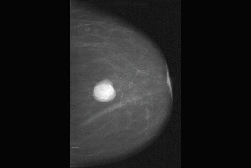 Mammogram of fibroadenoma (SPL)